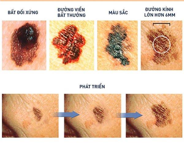 Dấu hiệu của nốt ruồi gây ung thư