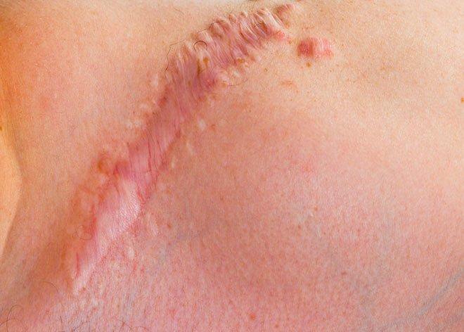 Loại gel này có thể giúp mọi vết thương hở lớn lành lại hoàn toàn mà không để lại sẹo.