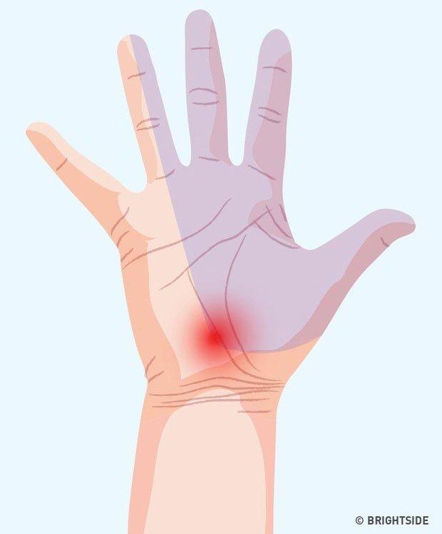 Người mắc hội chứng ống cổ tay sẽ gặp phải những triệu chứng như đau, ngứa ran hoặc tê các ngón tay...