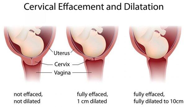 Khi sản phụ sinh thường, sẽ có 3 giai đoạn chuyển dạ