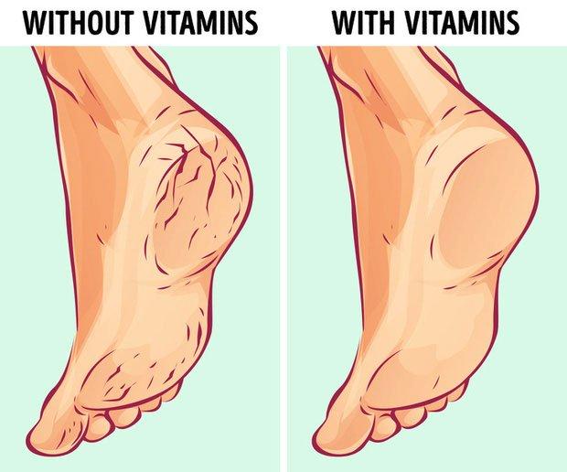 Do cơ thể thiếu vitamin