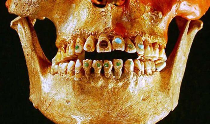 Ngày nay, khoa học và công nghệ hiện đại cho phép con người làm đẹp răng bằng nhiều cách, ngay cả việc thay răng mới, trồng răng vàng, răng bạc.