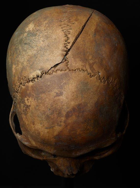 Nhiều dấu vết nứt vỡ của hộp sọ cho thấy các nạn nhân phải chịu cái chết thảm khốc