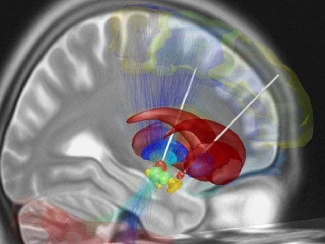 Kích thích não sâu (DBS)