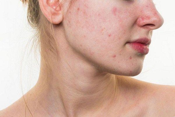 Dị ứng da mặt ảnh hưởng nghiêm trọng đến cuộc sống.