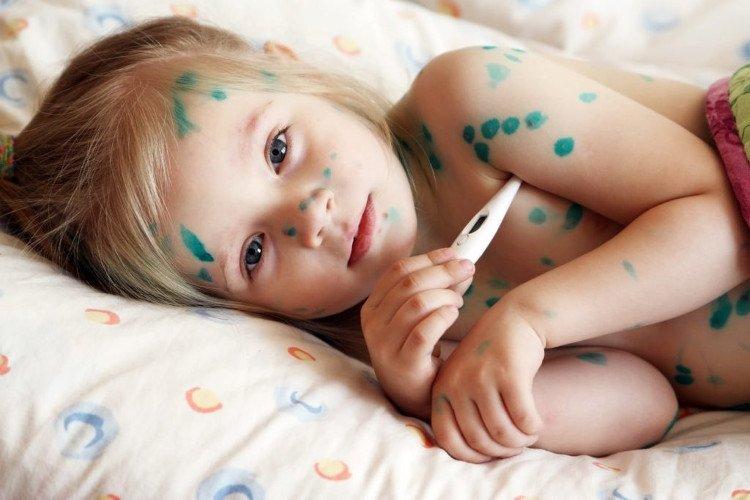 Hiện tại đã có biện pháp chủ động để phòng ngừa bệnh thủy đậu, đó là chủng ngừa bằng vắc-xin.