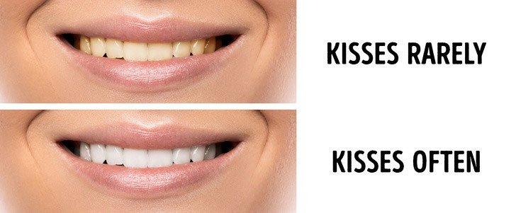 Đến răng cũng đẹp hơn nhờ hôn