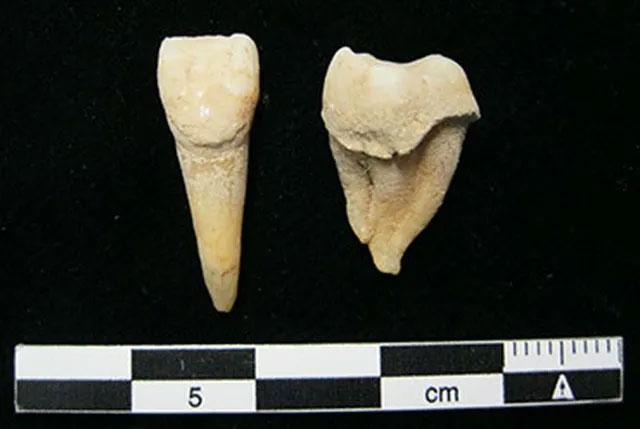 Những chiếc răng trong nghĩa trang cổ niên đại khoảng 1300 năm trước Công nguyên