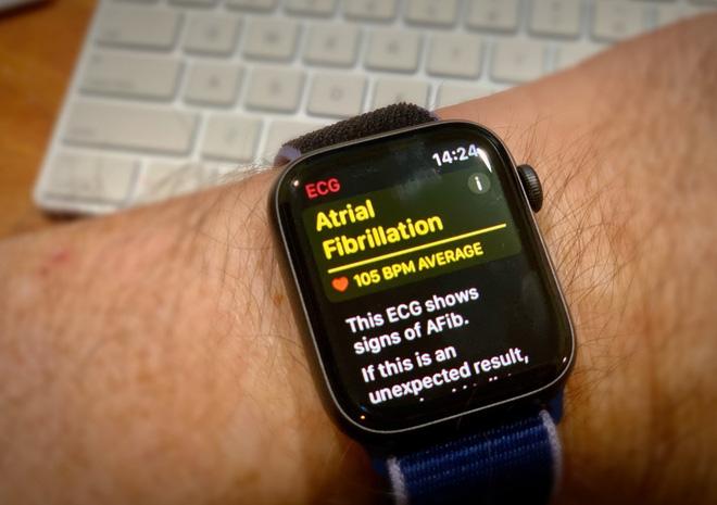 Khách hàng cảm ơn vì được Apple Watch cứu sống, CEO Tim Cook lập tức gửi mail cảm ơn khách hàng - Ảnh 1.