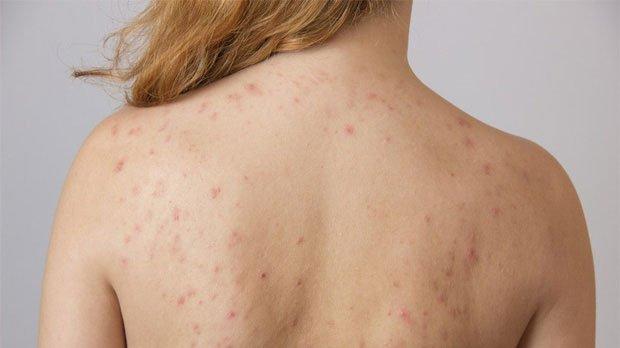 Khi bị rối loạn nội tiết, cơ thể sẽ sản sinh ra nhiều mụn, đặc biệt mụn ở mặt và lưng.