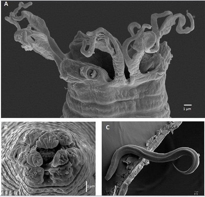 Cận cảnh tuyến trùng dưới kính hiển vi điện tử quét .