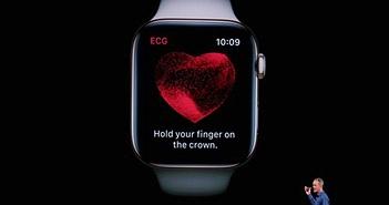Apple Watch không thể phát hiện AFib ở nhịp tim trên 120bpm