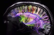 Trí tuệ con người có thể được diễn giải bằng một thuật toán