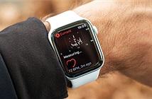 Táo khuyết bị kiện liên quan tính năng quan trọng trên Apple Watch