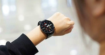 Lộ hình ảnh thực tế của Xiaomi Watch Color