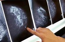 AI của Google Health có thể phát hiện ung thư vú mà mắt người không thể nhận diện