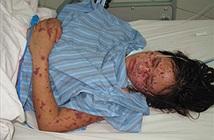 Hà Nội ghi nhận ca nhiễm viêm não mô cầu nguy hiểm đầu tiên