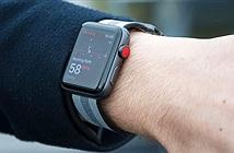 Apple Watch đánh bại mọi đối thủ, thống trị thị trường wearable 2017
