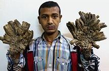 Ngỡ ngàng người cây Groot đời thực và đôi tay dị nhân
