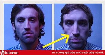 Tại sao mũi bạn thường to hơn khoảng 30% khi chụp ảnh selfie cận cảnh?