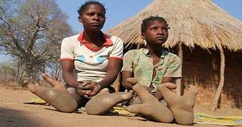 """Bộ lạc """"chân đà điểu"""" kỳ lạ ở châu Phi"""