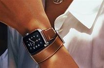 Apple sẽ trang bị màn hình Always On cho Apple Watch thế hệ mới