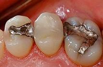 Hàn răng nhiều lần sẽ khiến bạn nhận một kết cục vô cùng đáng sợ