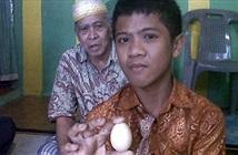 Chuyện thật hay đùa: Cậu bé 1 tuần đẻ ra 7 quả trứng