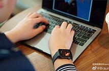 Cận cảnh Xiaomi Mi Watch: đặt cạnh MacBook đẹp chẳng kém Apple Watch