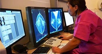 AI của Google chẩn đoán ung thư vú tốt hơn cả bác sỹ