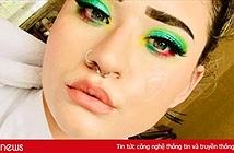 Cô gái Anh cụt tứ chi trở thành beauty blogger nổi tiếng trên mạng