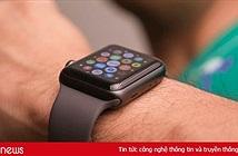 Apple bị kiện vì tính năng theo dõi nhịp tim