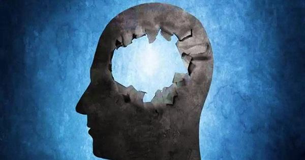 Chuyện lạ có thật về bộ não con người