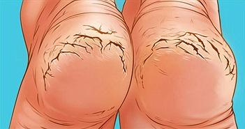 Vì sao nhiều người thường bị nứt gót chân?
