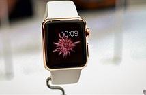 Bạn có thể dùng 10.000 USD để mua 10 thứ sau thay cho Apple Watch