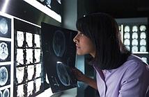 IBM mua lại Merge Healthcare để nâng cấp siêu máy tính Watson