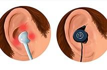 [Kickstarter] Revols - Chiếc tai nghe thay đổi được hình dáng
