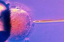 Những điều cần biết về thụ tinh trong ống nghiệm