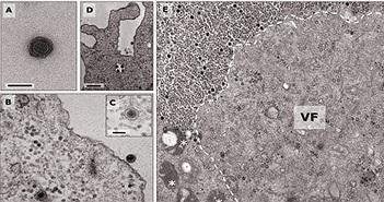 """Phát hiện virus """"thần nước"""" mang bộ gene chưa từng được biết đến"""