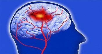 Xuất huyết não xuất hiện cả ở người trẻ, hãy cẩn thận nếu thuộc các trường hợp sau