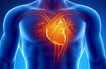 Điều gì xảy ra khi lên cơn đau tim?
