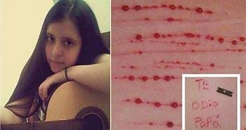 Chuyện lạ hôm nay: Cô bé tự rạch khắp cơ thể và nỗi đau phía sau
