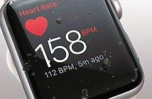 Những kẻ nghiện đang tận dụng tính năng đo nhịp tim của Apple Watch và Fitbit