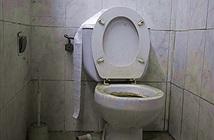 Nhà vệ sinh tắc bất thường, kiểm tra phát hiện điều rợn người...