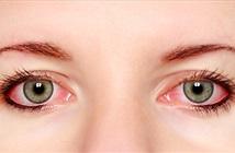 Những điều không thể không biết về bệnh đau mắt đỏ