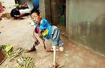 Người đàn ông khuyết tật, nhưng ai cũng noi gương vì...