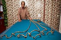 Kinh dị cảnh cắt bỏ bộ móng tay dài nhất thế giới