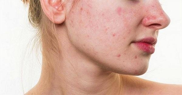 Cách xử lý khi bị dị ứng da mặt