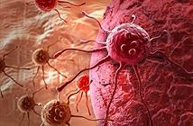 Phương pháp mới tiêu diệt tế bào ung thư đại trực tràng