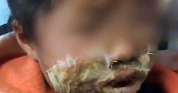 Samsung Note 4 phát nổ làm bé gái 4 tuổi bị biến dạng khuôn mặt vĩnh viễn